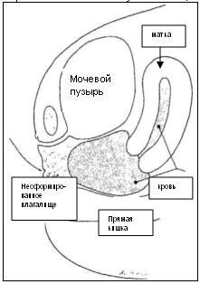 Патологическая анатомия синдрома МРКХ (стрелочкой показано несформированное влагалище.