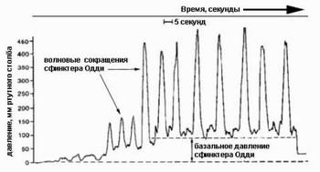 Дискинезия желчных путей - Кривая манометрии