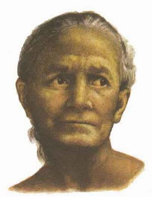 ЖЕЛТУХА - Лицо больной с выраженной механической желтухой