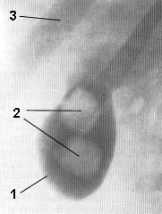 Холецистография при наличии двух крупных камней в желчном пузыре
