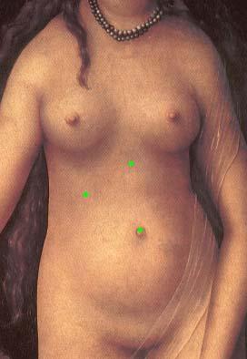 Лапароскопическая микрохирургическая холецистолитомия