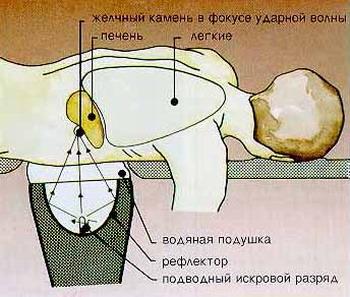 ЛИТОТРИПСИЯ - Схема проведения сеанса литотрипсии