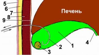 Контактный литолиз желчных камней