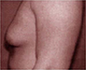 Гинекомастия на фоне приема стероидов