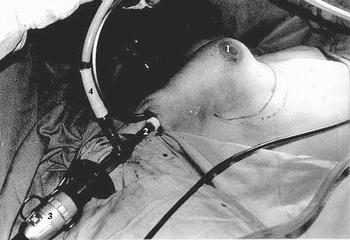 ГИНЕКОМАСТИЯ - этап эндоскопической операции при гинекомастии