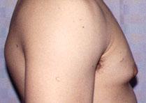 ГИНЕКОМАСТИЯ - Пациент с гинекомастией до операции