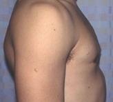 ГИНЕКОМАСТИЯ - Тот же пациент после операции.