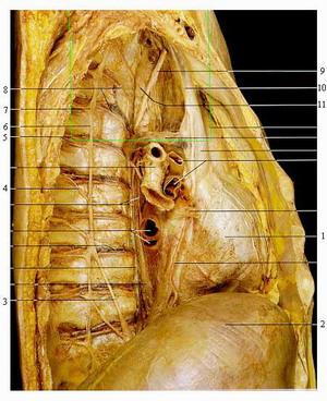 ГИПЕРГИДРОЗ - анатомический препарат симпатического ствола