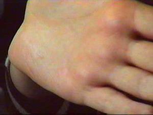 Ладонь пациентки после клипирования симпатического ствола