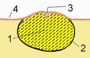АТЕРОМА - Схема строения атеромы