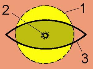 АТЕРОМА - Схема разреза кожи для удаления атеромы