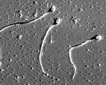 Сперматозоиды человека - изображение получено при помощи электронного микроскопа