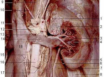 ВАРИКОЦЕЛЕ - Аорто-мезентериальная вилка - анатомический препарат