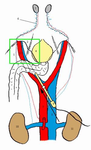 ВАРИКОЦЕЛЕ - что видит хирург при лапароскопической операции по поводу варикоцеле